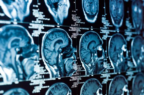 טומוגרפיה ממוחשבת. מוח