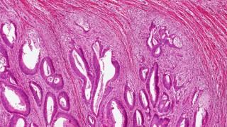 תמונה מיקרוסקופית של סרטן המעי הגס (אילוסטרציה)