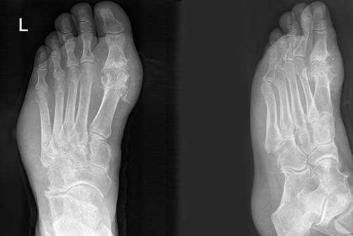 צילום רנטגן - גאוט ברגל שמאל (מקור: ויקיפדיה)