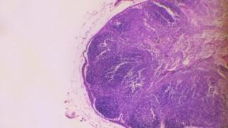 מראה מיקרוסקופי של בלוטת לימפה (אילוסטרציה)