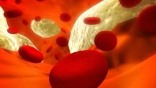 קריש דם (אילוסטרציה)