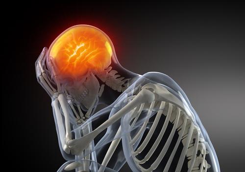 פגיעת מוח (אילוסטרציה)