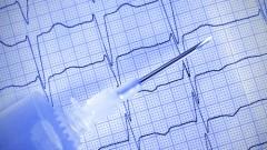 א.ק.ג לבדיקת הפרעת קצב בלב (אילוסטרציה)