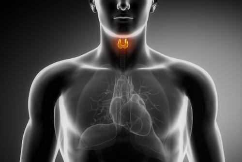 סרטן בלוטת התריס (אילוסטרציה)