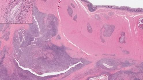 אנדומטריוזיס - תצוגה מוגדלת מדגימה של בלוטת רירית הרחם (אילוסטרציה)