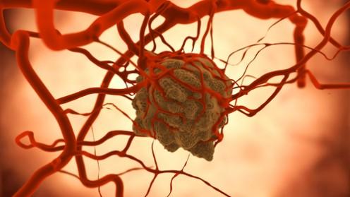 גידול סרטני (אילוסטרציה)