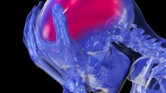 שבץ מוחי (אילוסטרציה)