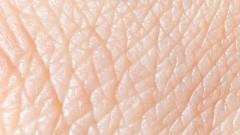 עור (צילום: אילוסטרציה)