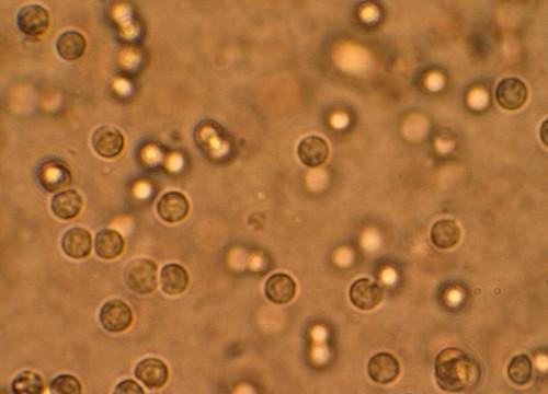 תאי דם לבנים בשתן, בחולים בדלקת בדרכי השתן (מקור: ויקיפדיה)