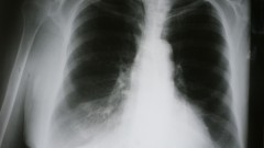 צילום רנטגן של חולה COPD (צילום: אילוסטרציה)