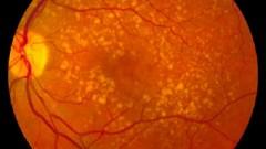 ניוון תלוי גיל של מרכז הראייה, AMD (צילום: ויקיפדיה)