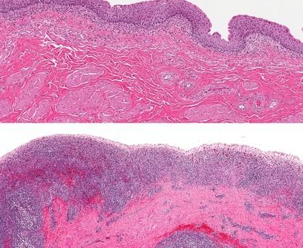 סרטן שלפוחית השתן (צילום: אילוסטרציה)