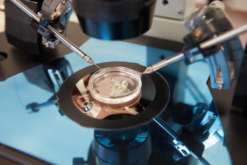 הפריה חוץ-גופית, IVF (צילום: אילוסטרציה)