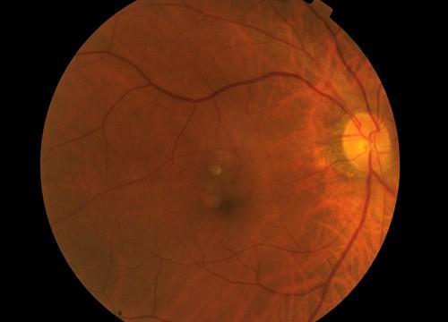 עין (צילום: אילוסטרציה)