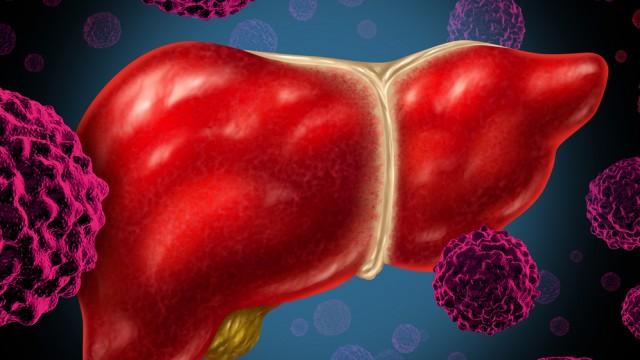 סרטן בכבד (צילום: אילוסטרציה)