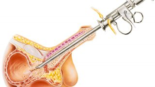 האם אמבוליזציה של עורק הערמונית עולה לבית החולים יותר מכריתת ערמונית?