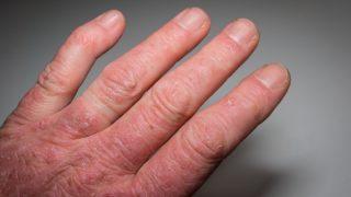 על-קול עורקי התרדמה להערכת סיכון קרדיווסקולרי בחולי דלקת מפרקים ספחתית