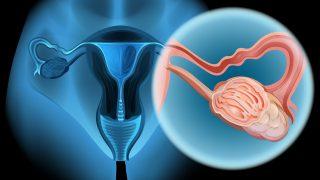 תפקוד קוגניטיבי ואיכות חיים לאחר ניתוח סלפינוגפרקטיומיה דו צדדי