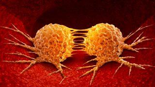 מאדנומה טרום ממאירה לקרצינומה – שינויים גנטיים