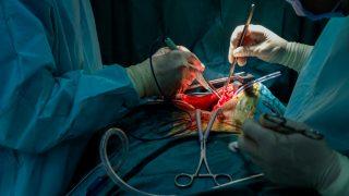 השוואה בין ניתוח חזה בסיוע וידיאו לכריתת אונה בניתוח פתוח